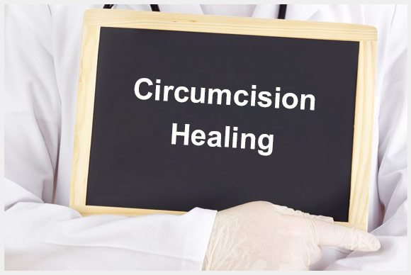 Prominent Painless Circumcision Surgery Techniques